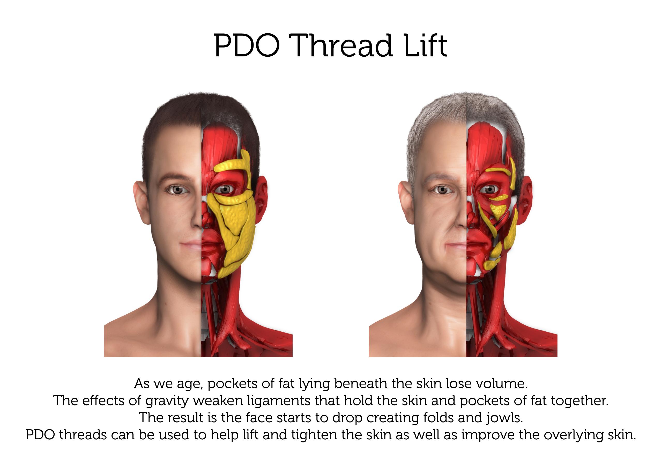 PDO-Thread-Lift-(Male)