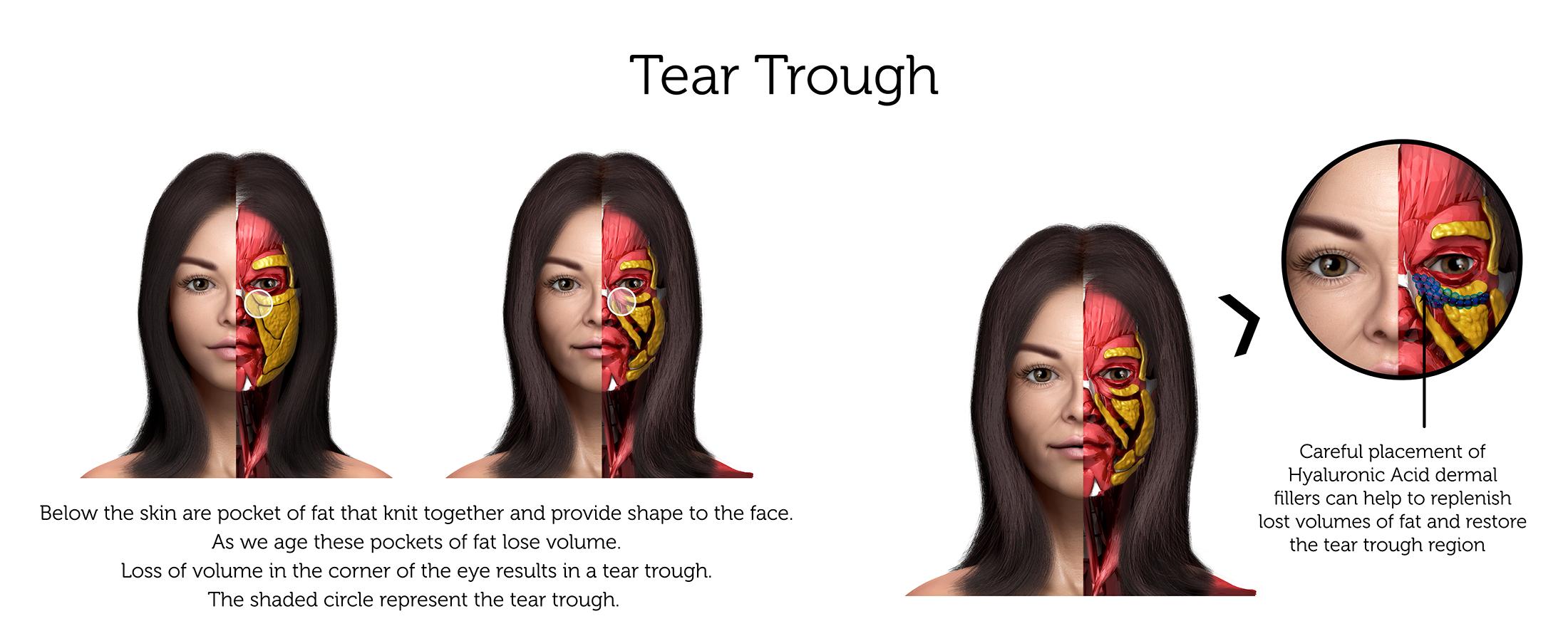 Tear Trough (Female) ab-01