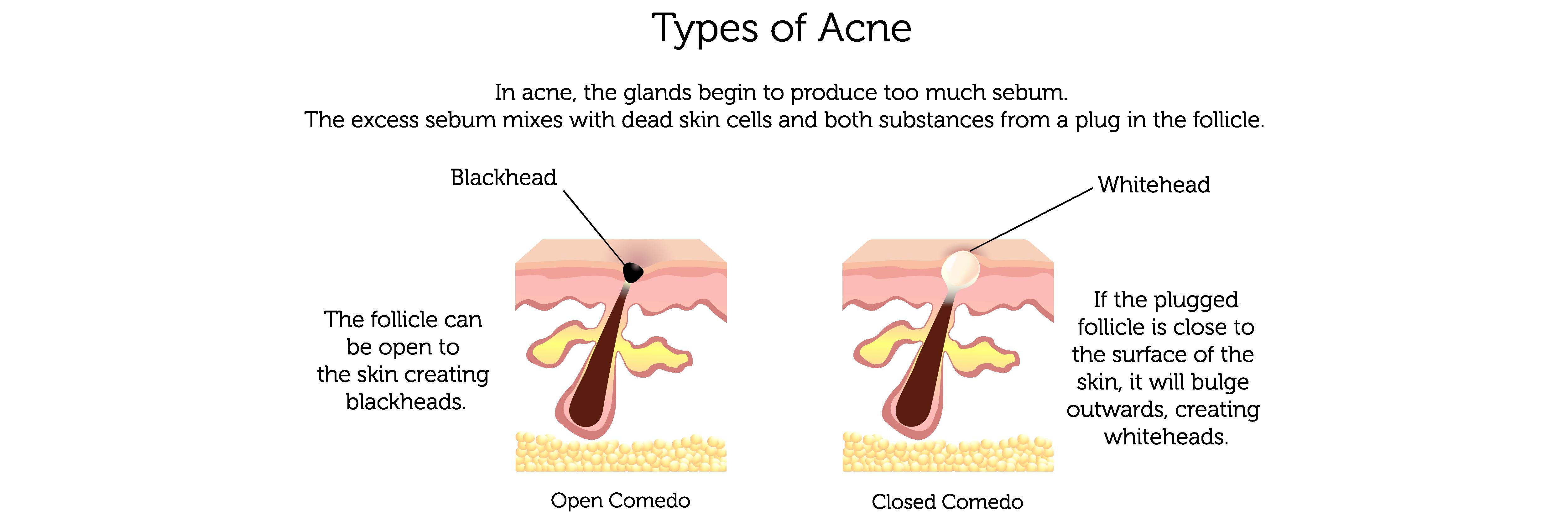 Acne Types (b)-01
