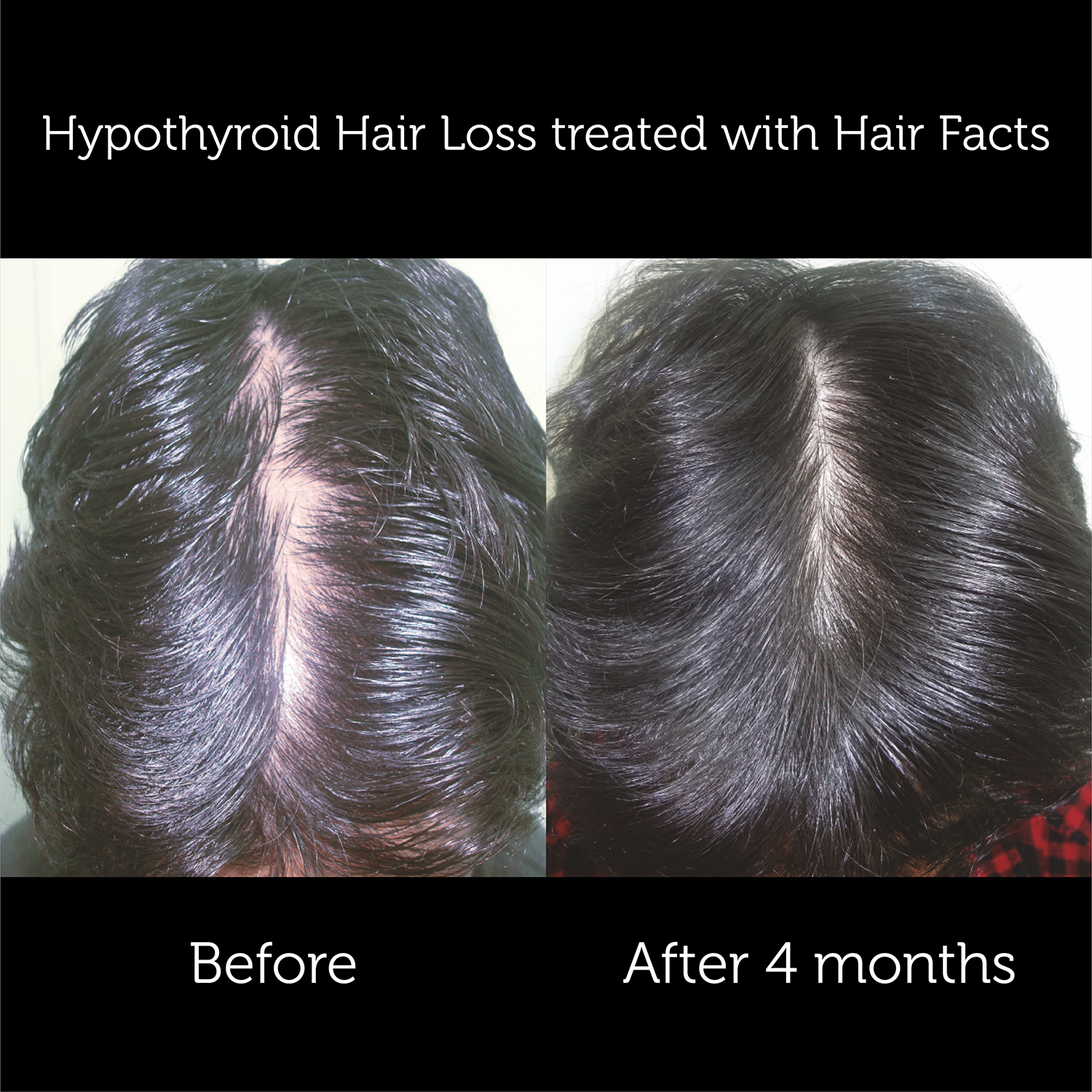 Hair Facts Supplements 3