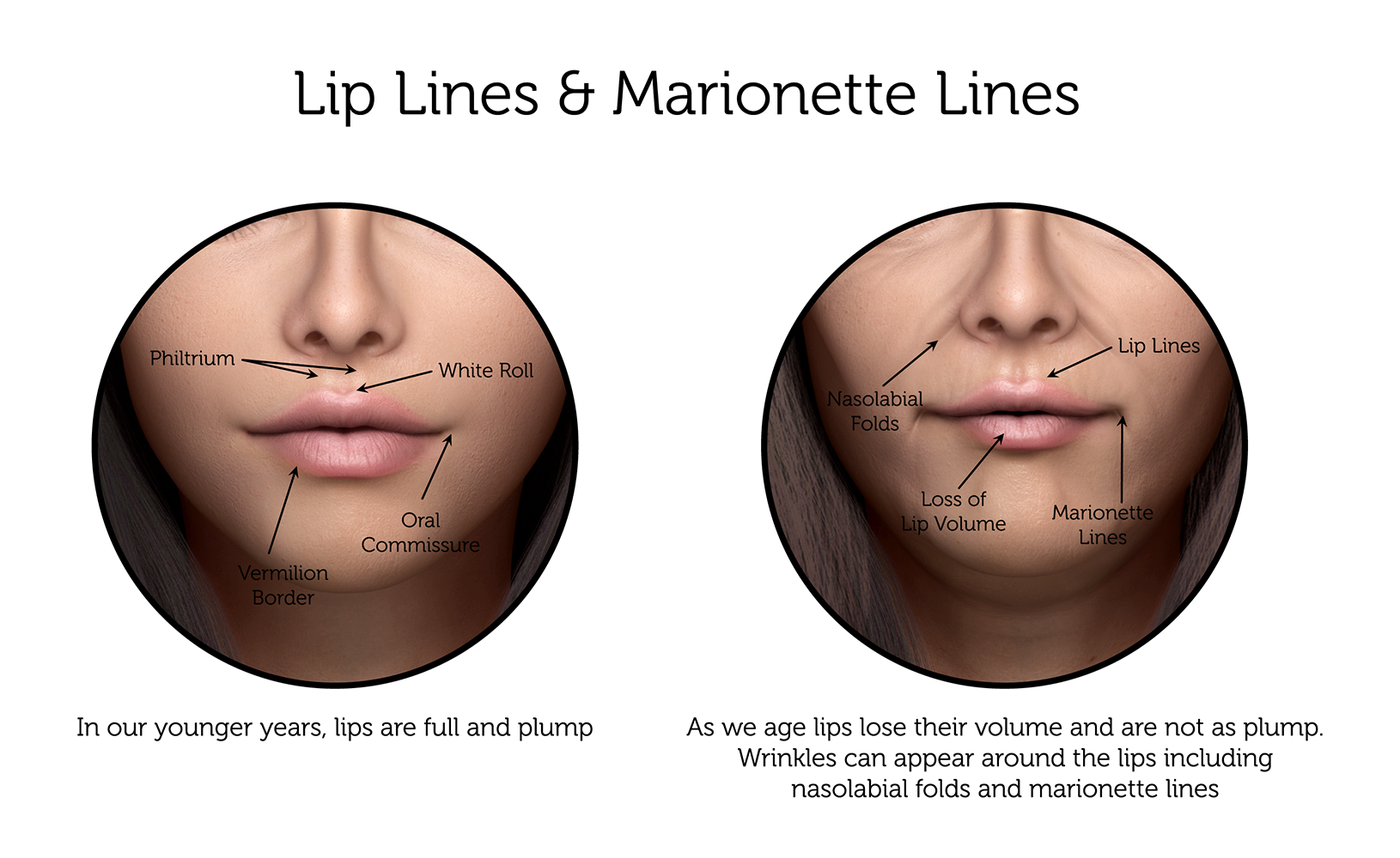 Lip-Lines-_-Marionette-Lines-(Female)