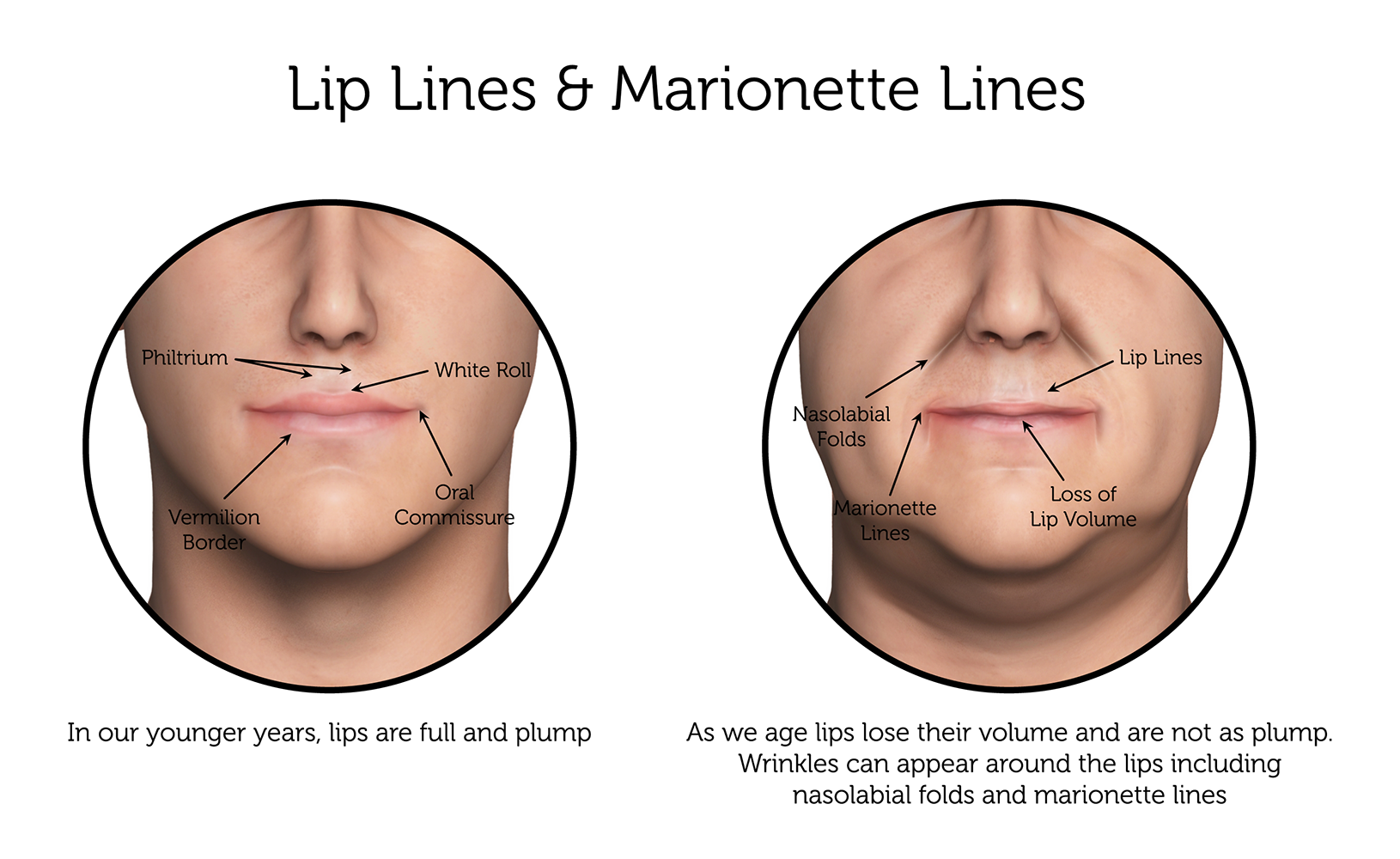 Lip-Lines-_-Marionette-Lines