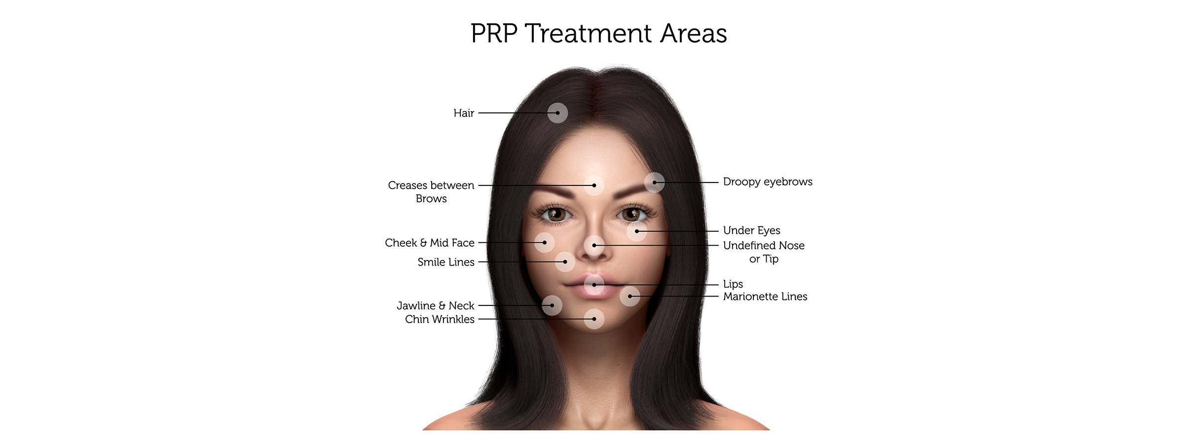 PRP-Treatment-Areas-(Female)