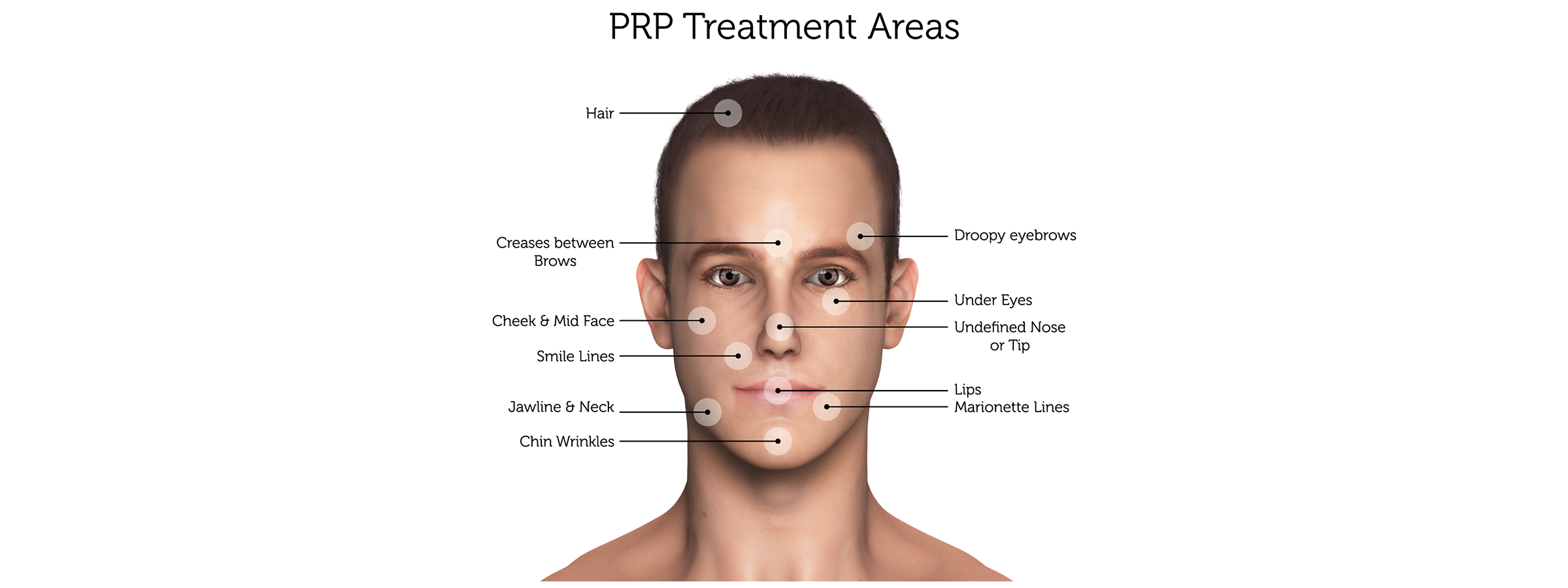 PRP-Treatment-Areas-(Male)