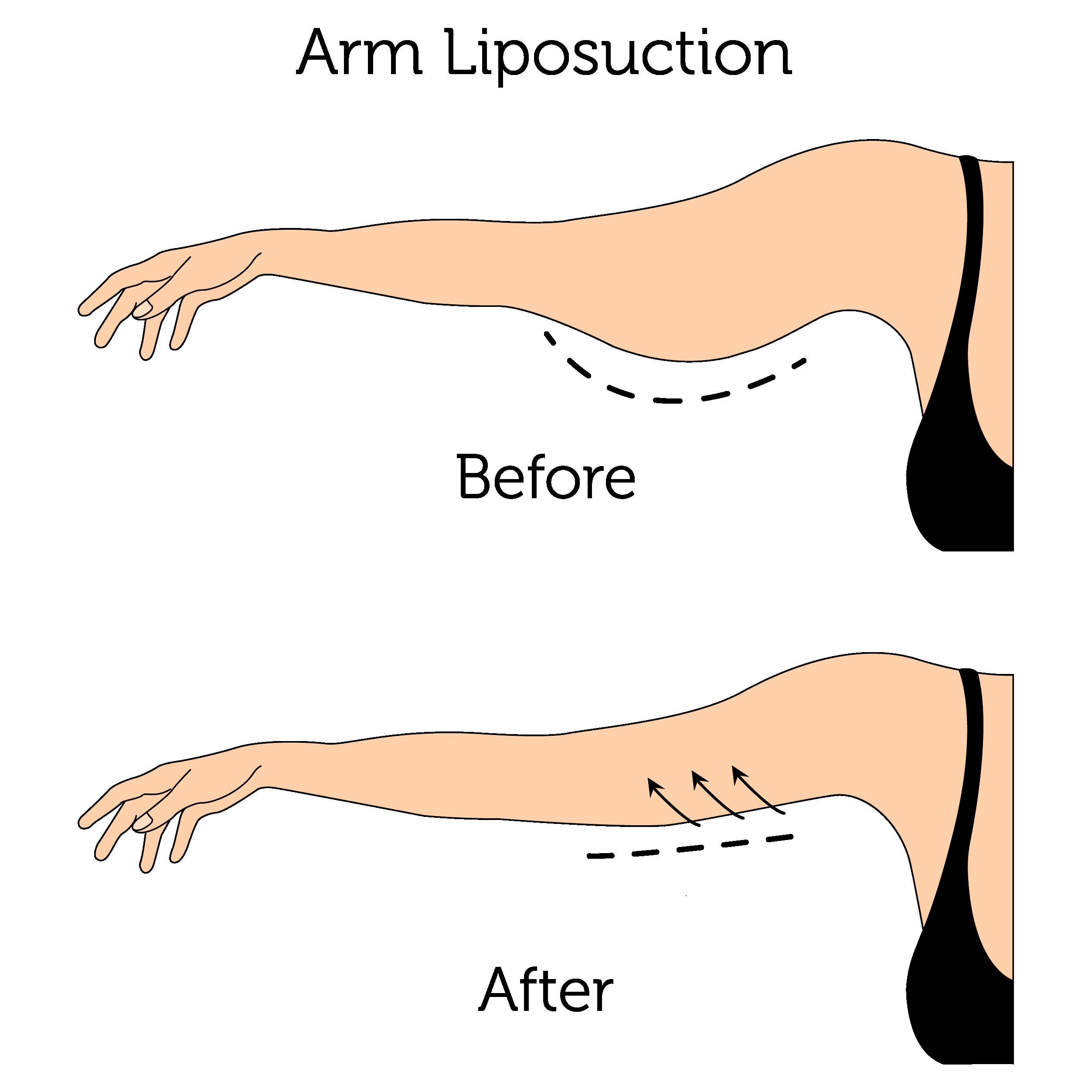 Arm Liposuction (Female)-01