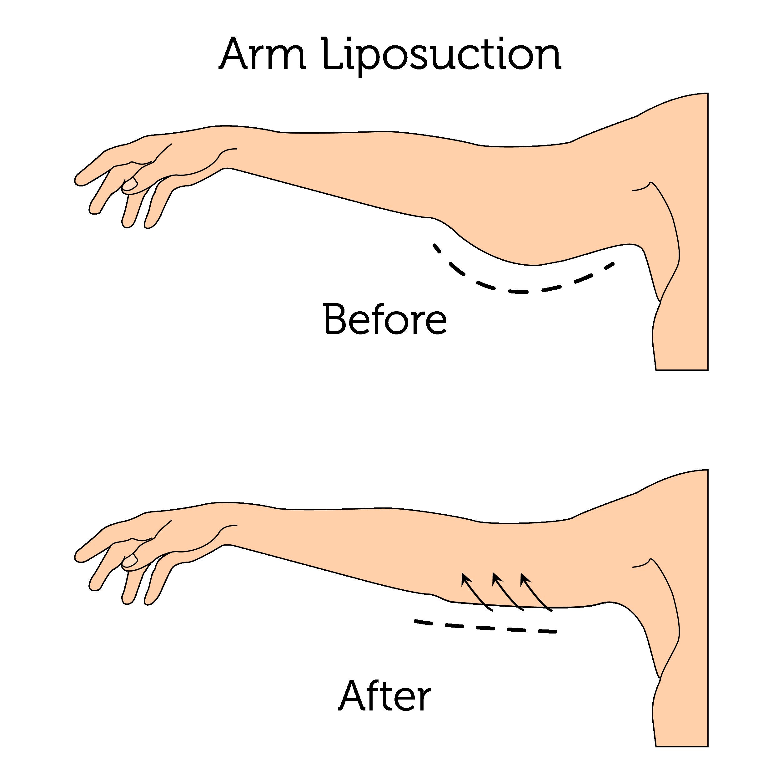 Arm Liposuction (Male)-01