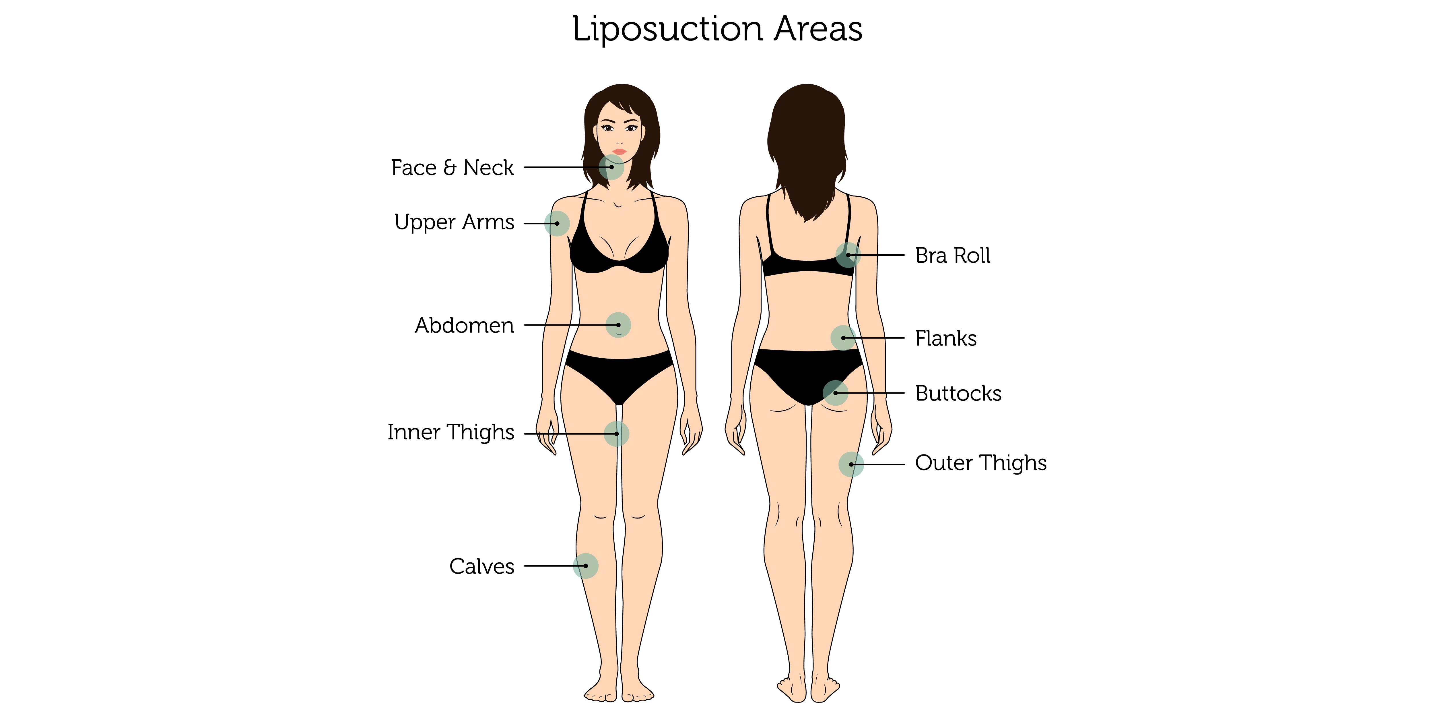 Liposuction Areas (Female)-01