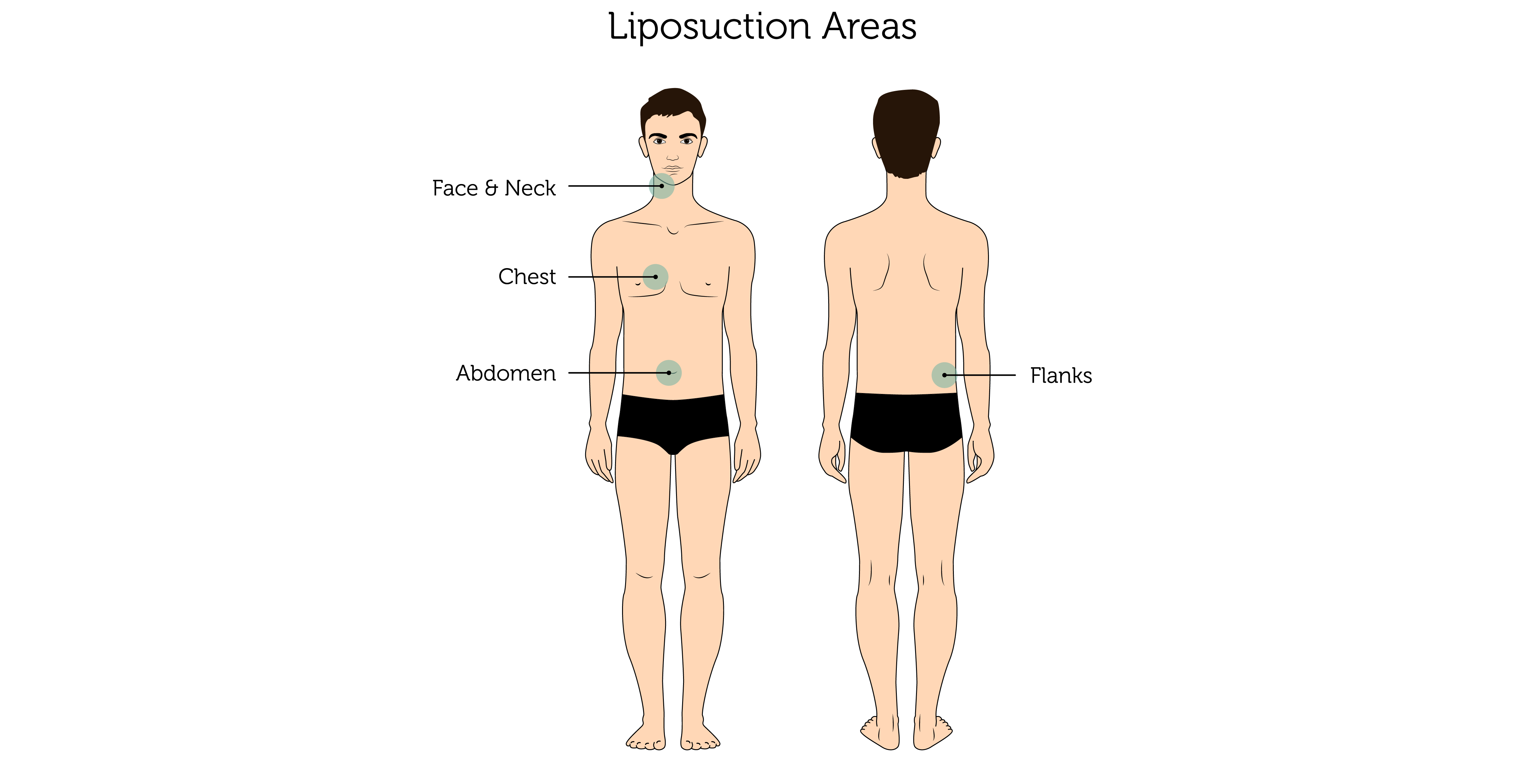 Liposuction Areas (Male)-01 (2)