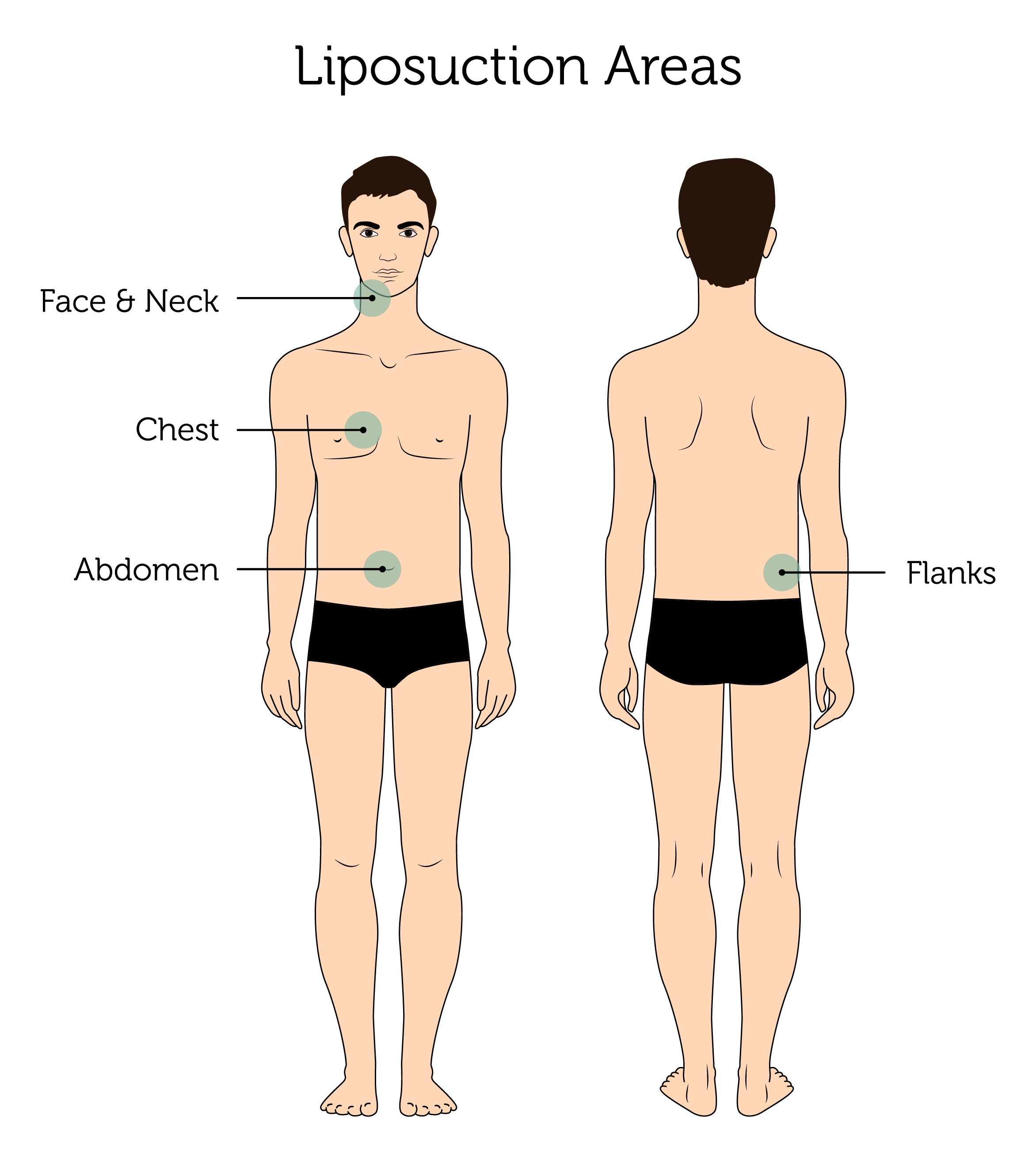 Liposuction Areas (Male)-01