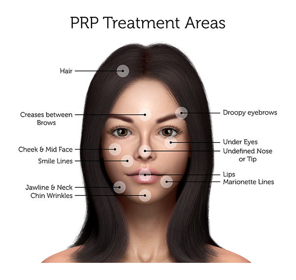 PRP Treatment Areas (Female)