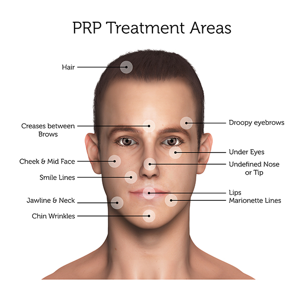 PRP Treatment Areas (Male)